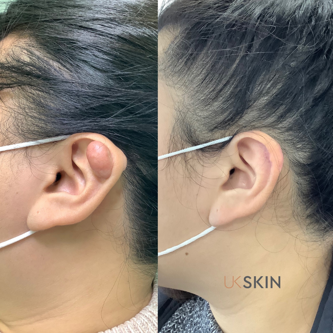 Before & After Gallery UK Skin